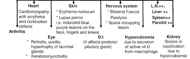 Extrapulmonary-manifestations-sarcoidosis