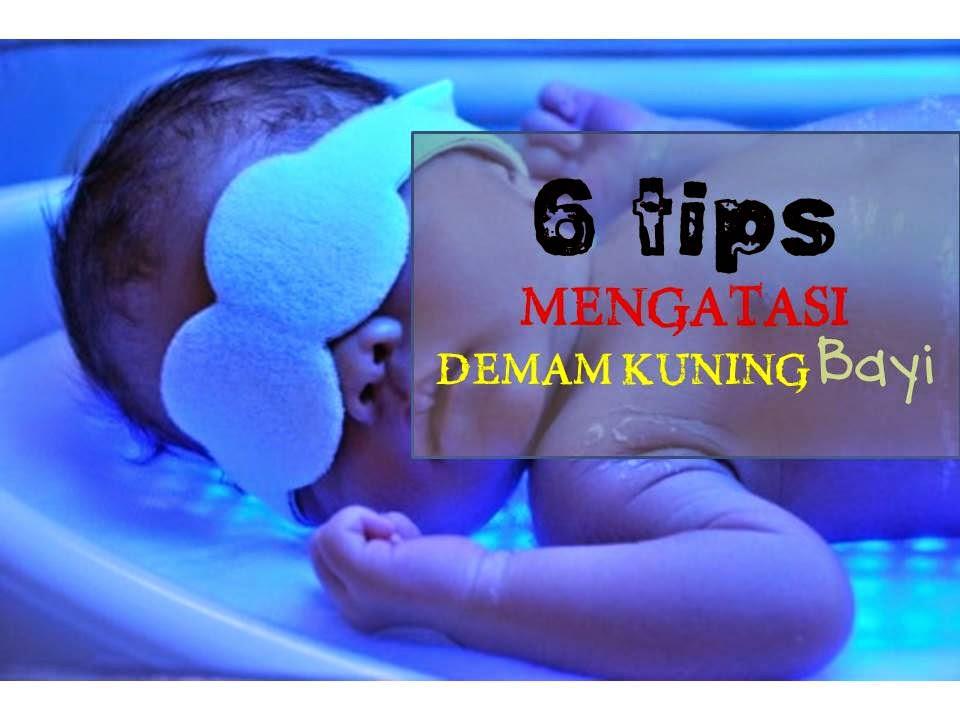 6 tips mengatasi demam kuning bayi supaya tidak perlu tukar darah