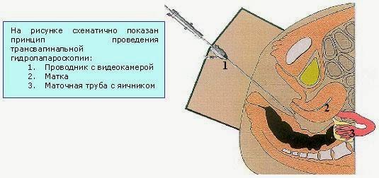 Определение проходимости маточных труб в домашних условиях