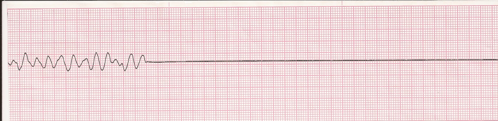 asystole rhythm strip