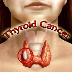 Sete sinais de alerta para câncer de tireoide