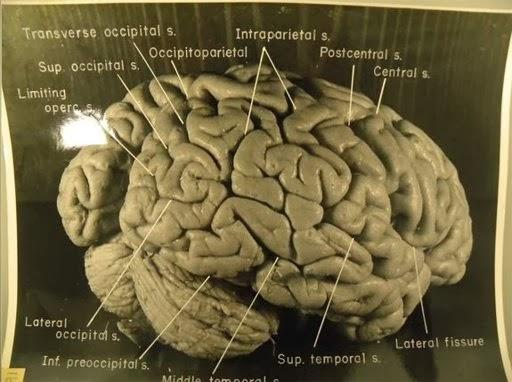 Ini Dia Foto Otak Kejeniusan Einstein