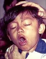 http://obatsinusitisakut.blogspot.com/2013/11/obat-tbc-untuk-anak.html