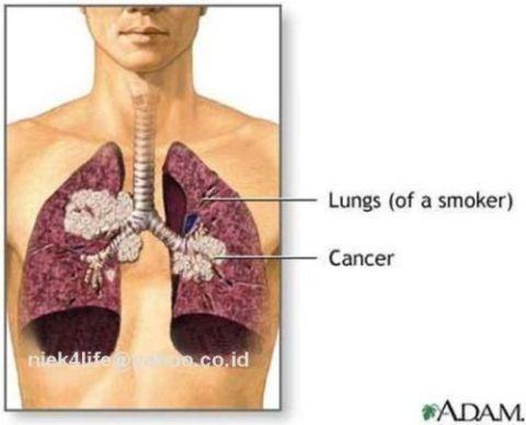 Болят легкие со спины после курения