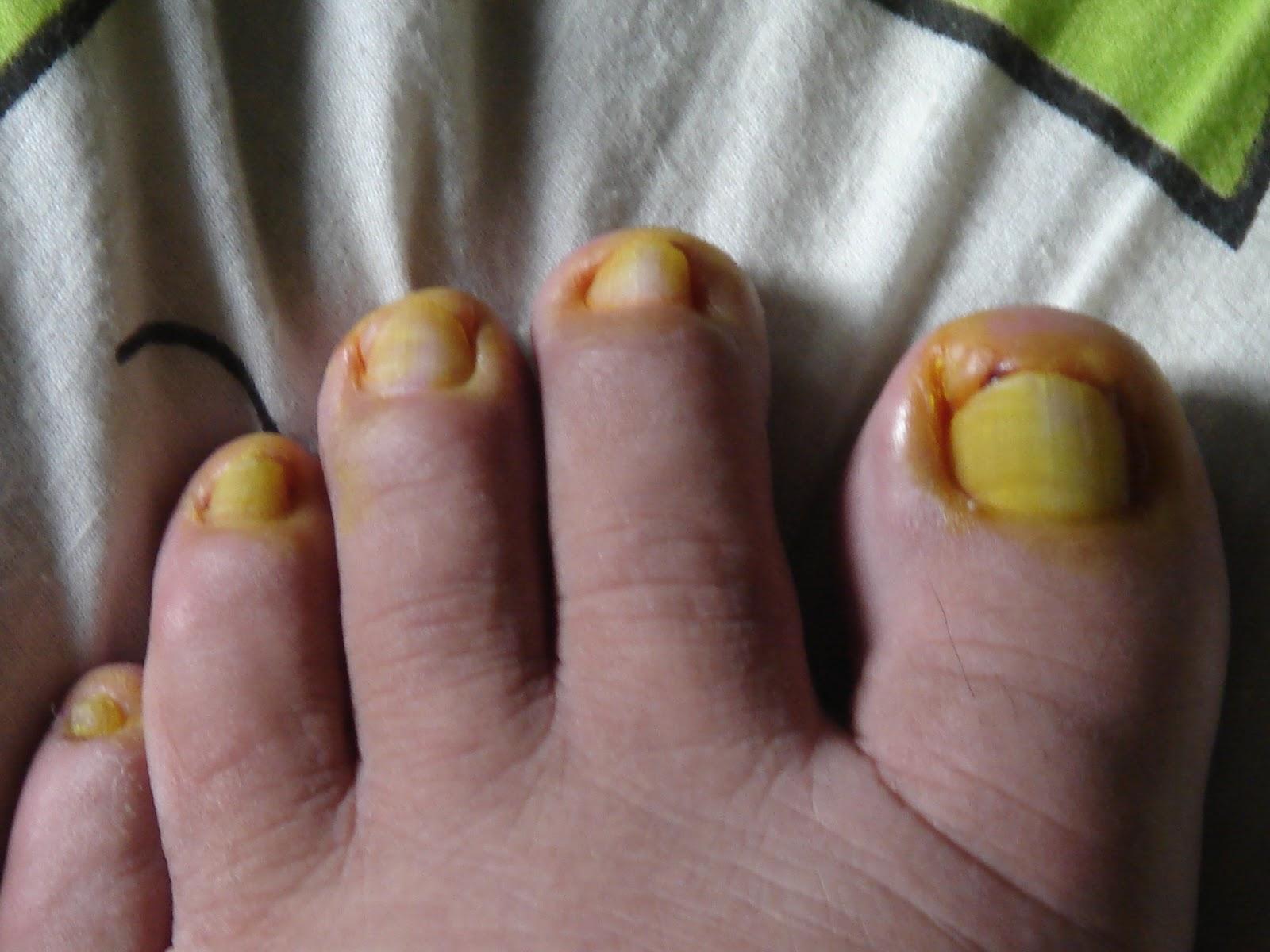 MY PRECIOUS BUTIZA: Oh My Big Toe Nail