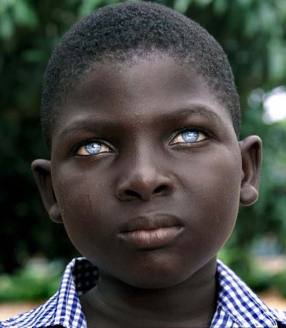 Blacks With Blue Eyes Natural Phenomenon Or Genetic