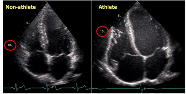 Сердце атлета. Гипертрофия левого желудочка сердца.
