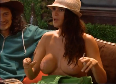 See the bandages? Remember this is not nudity! Amanda just sat there