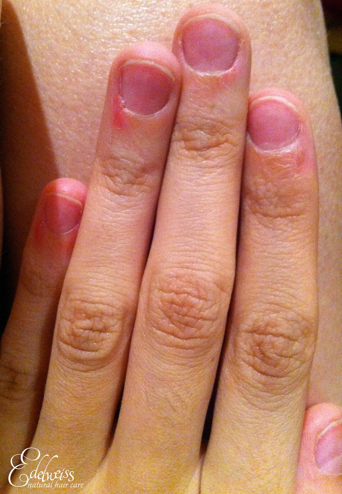 soin au ricin pour ongles rongés
