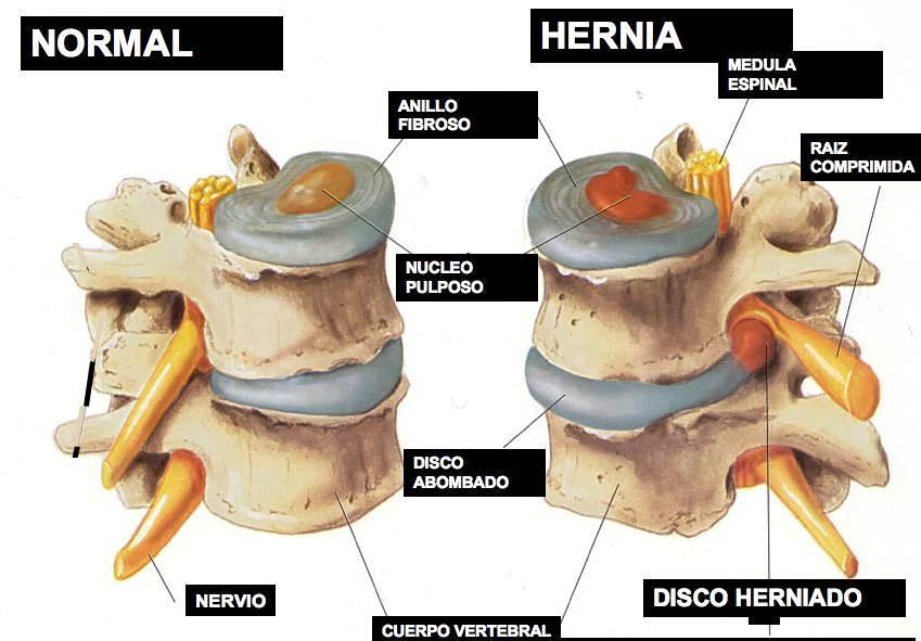 La espalda duele de abajo a la izquierda el vientre