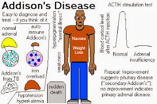 Addison's Disease Causes, Symptoms, Diagnosis, Treatment, Prevention