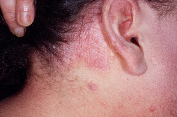 Red patches on the scalp, dry scalp and itching are some common symptoms of scalp psoriasis 2
