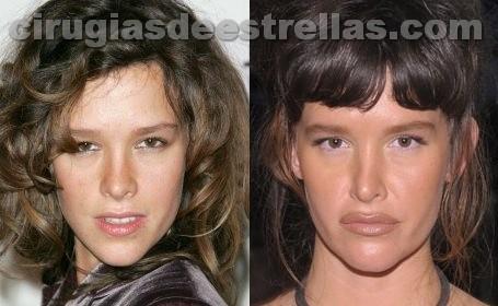 paz de la huerta plastic surgery