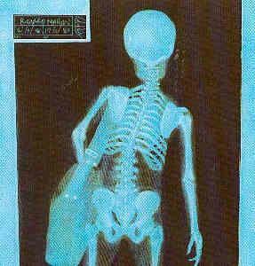 Posture+Chiropractor+Woodbridge+VA+Dr.+N