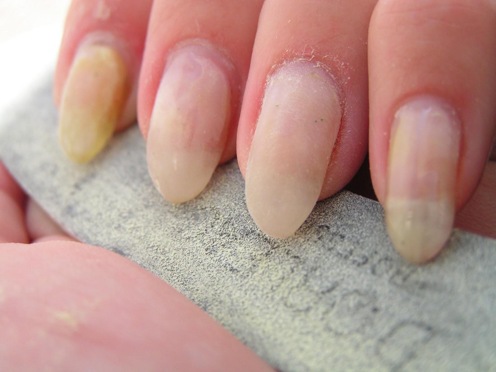 Nicki Minaj Pointy Nail Designs Cure affected nails again.