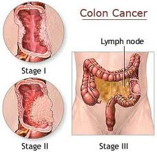 Obat herbal kanker usus