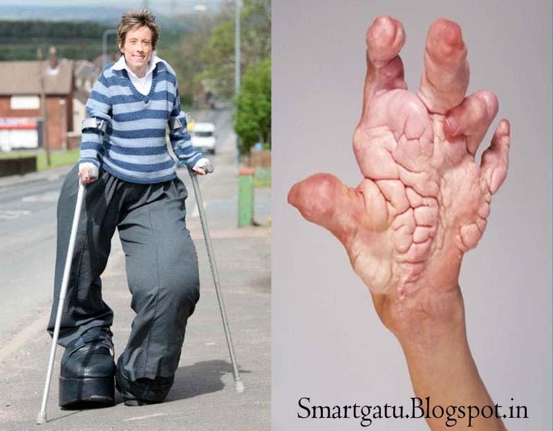 What is Proteus Syndrome Elephant Man Disease Symptoms