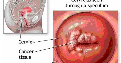 obat penyakit kanker serviks alami obat herbal