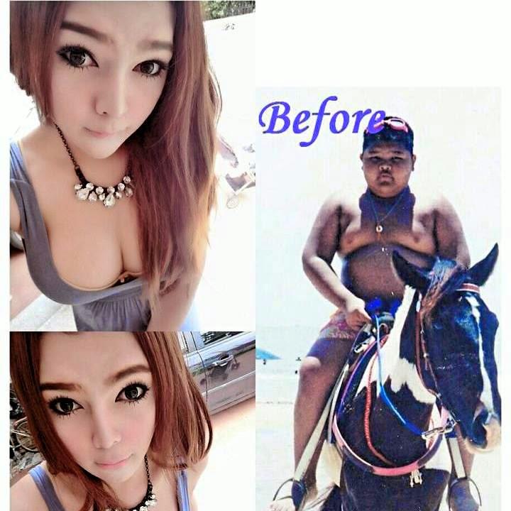 Vorher und Nachher, Pissy aus Thailand