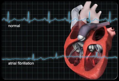 college essays college application essays heart attack essay heart attack essay