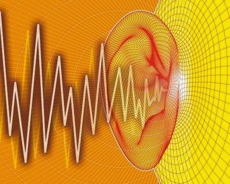 Pulsatile Tinnitus Cure Rate