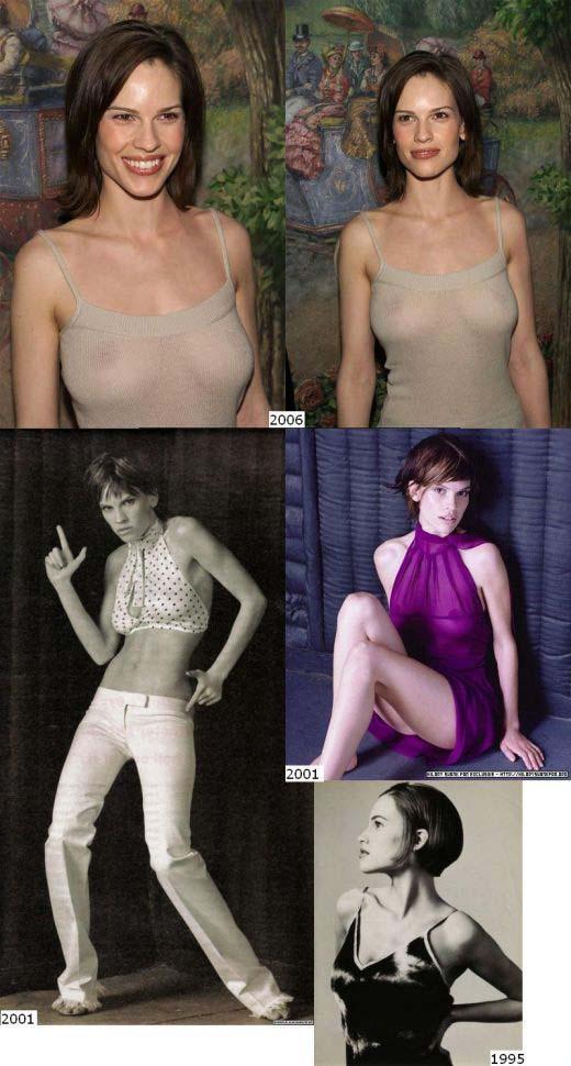 girls implants skinny Hot