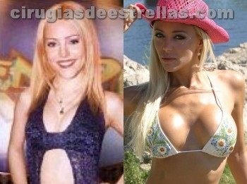 Evangelina Anderson antes y después