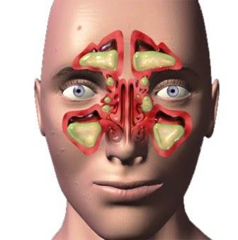 como tratar sinusite no inverno