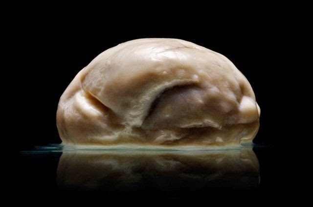 Bizarre Human Brain With No Wrinkles Discovered