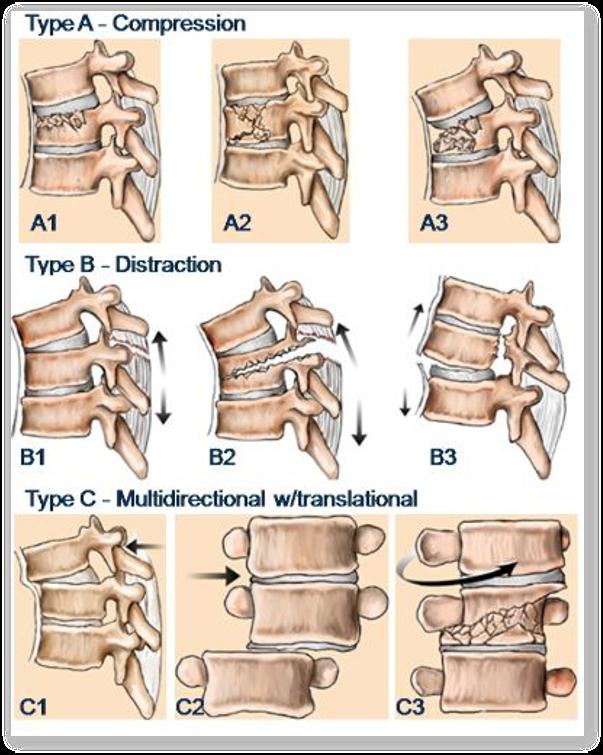 Fracturile coloanei vertebrale