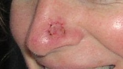 skin cancer on nose pictures