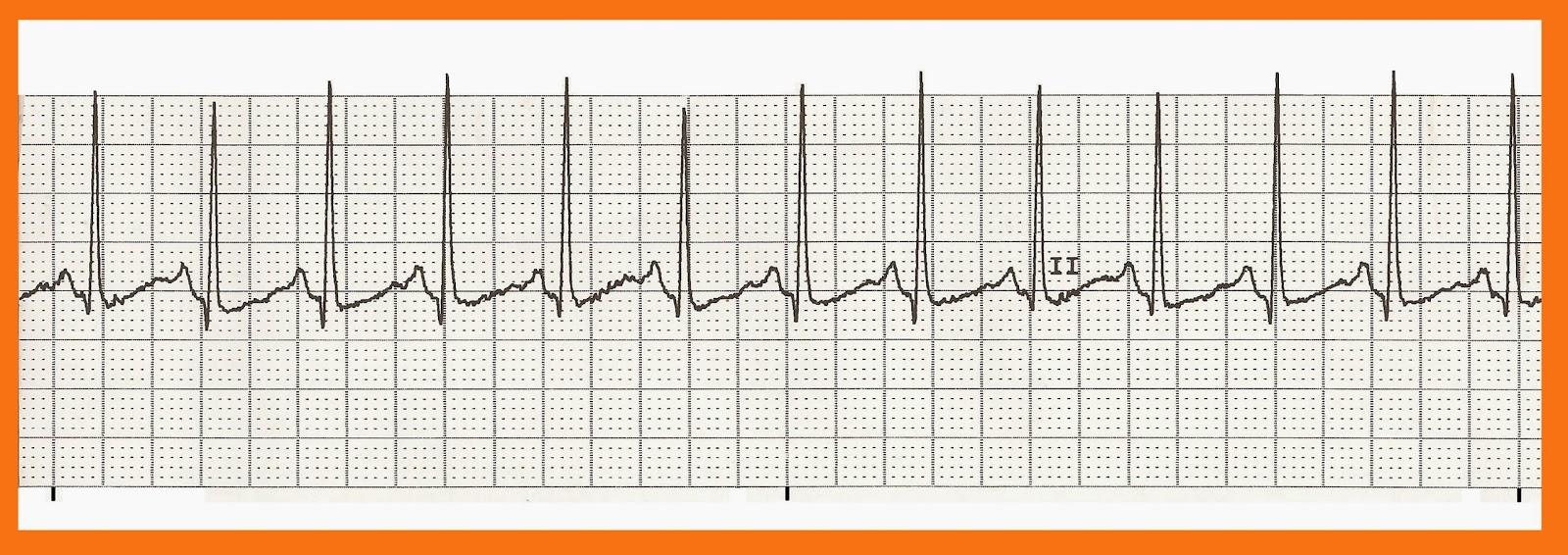 Float Nurse: EKG Rhythm Strip Quiz 195 Ventricular Tachycardia Rhythm Strip