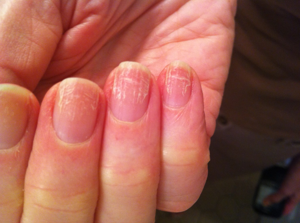 VIRTUAL GRAND ROUNDS IN DERMATOLOGY 2.0: Nail Dystrophy in a Nurse