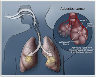 Mesothelioma Cancer and Asbestos