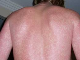 Picadura De Mosquito Infectada