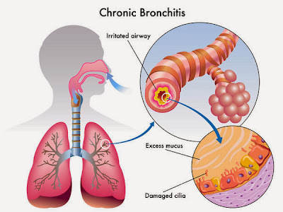 Chronic Bronchitis Causes, Symptoms, Diagnosis, Treatment, Prevention, Home Remedies
