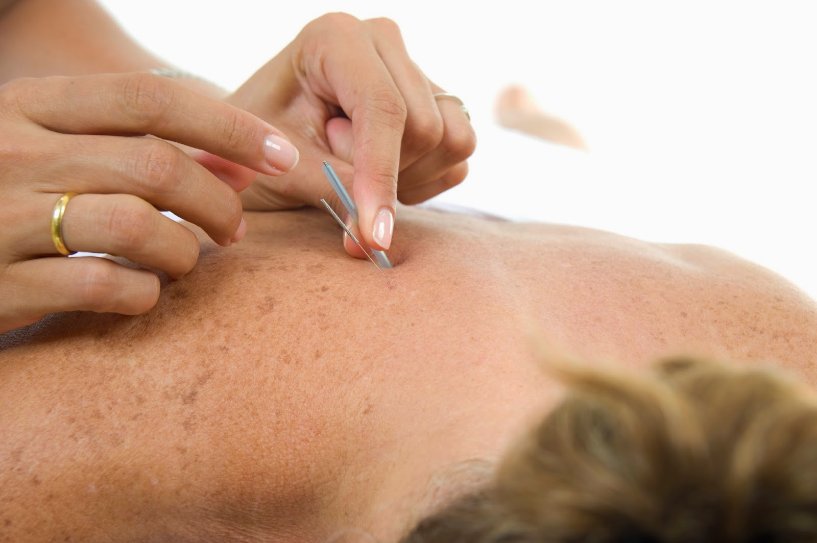 Acupuncture Therapy - Academy Massage - Acupuncture Therapists Winnipeg