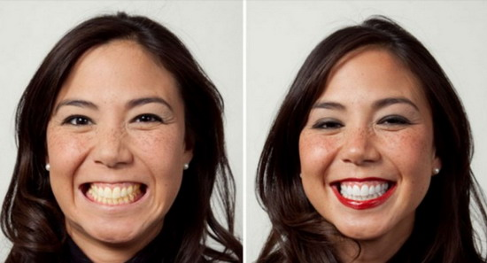 Cara Mudah Hilangkan Gigi Kuning Hanya dalam 3 Menit