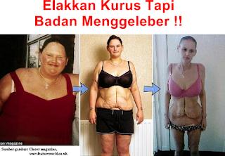 Kesan Negatif Jika Berat Badan Turun Mendadak
