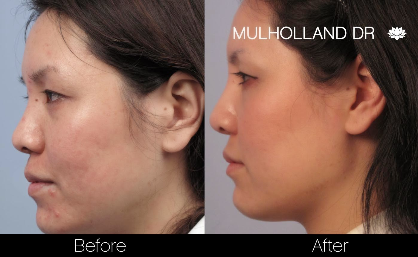 Before and after photo of acne treatments