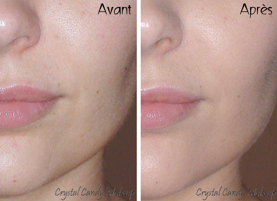 BB Cream Super + Hot Pink de Skin79 - Before After