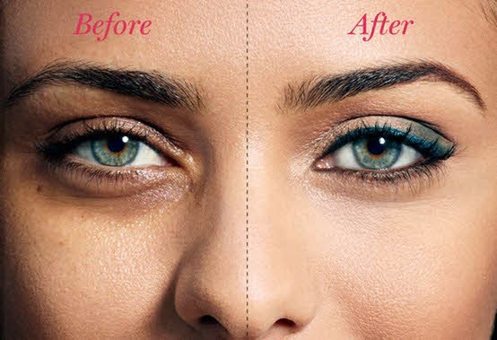 Best home remedies for dark circles