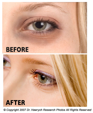 best under eye gel for dark circles