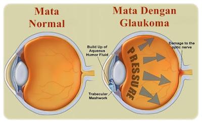 Cara Cepat Mengatasi Glaukoma Secara Herbal