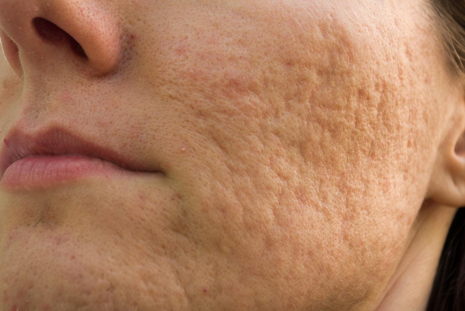Como quitar las cicatrices de acne 3 remedios naturales - Como quitar las humedades de la pared ...
