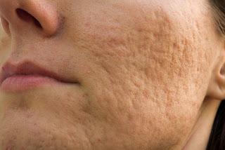 Como Eliminar Las Cicatrices De Acne