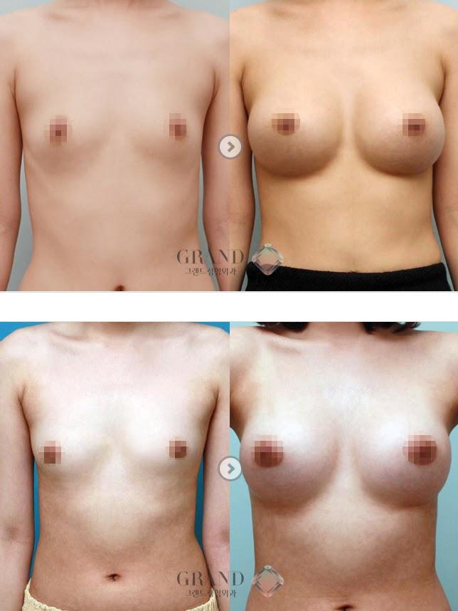 Как с помощью таблеток увеличить грудь