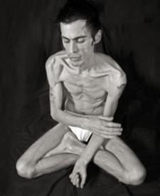 Manorexia - Anorexia Symptoms