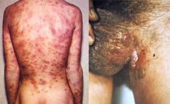Image Nama obat penyakit sipilis di apotik