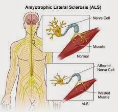 Causes, Symptoms, Diagnosis, Treatment for Amyotrophic lateral sclerosis (ALS)